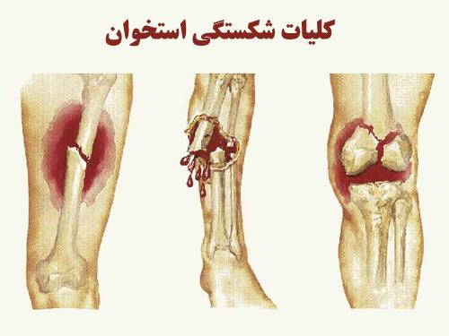 پاورپوینت کلیات شکستگی استخوان و علائم تشخیص انواع شکستگی