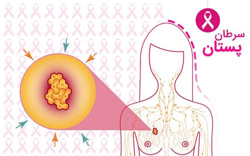 دانلود پاورپوینت شناخت سرطان پستان یا سرطان سینه