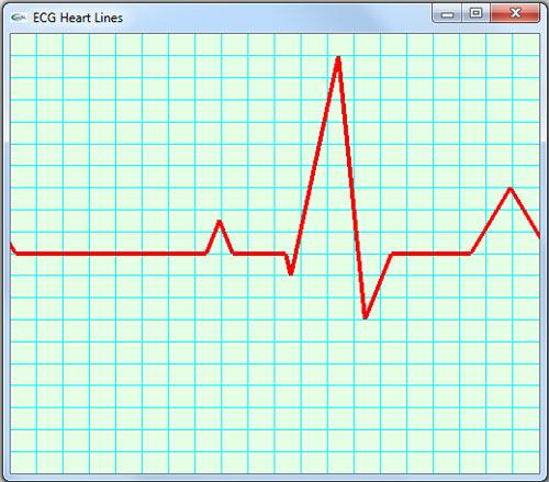 رسم نمودار نوار قلب یا الکتروکاردیوگرام در گرافیک