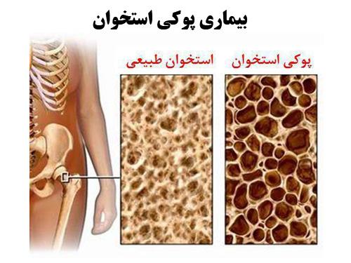 پاورپوینت با موضوع بیماری پوكی استخوان یا استئوپوروز