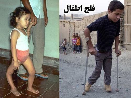 پاورپوینت فلج اطفال تاریخچه، علائم بالینی و عوارض آن