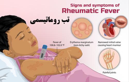 پاورپوینت تب روماتیسمی، علائم و عوارض، راههای تشخیص و درمان آن