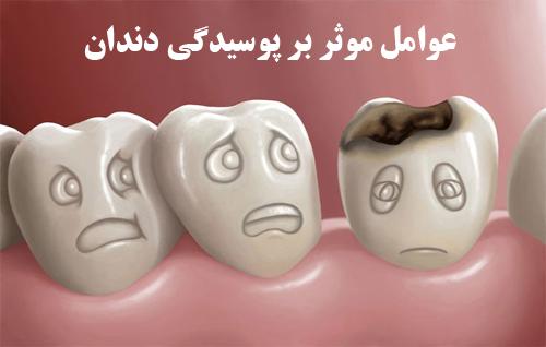 دانلود پاورپوینت عوامل موثر در پوسیدگی دندان و علایم آن